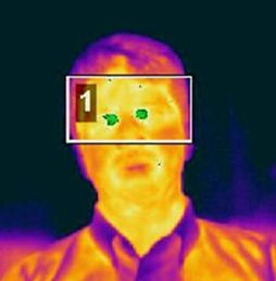 -Typical Output by Type Two Thermal Scanner. Left photo shows slight fever of 37.7 degrees Centigrade; right photo show elevated temperature of 38.2 degrees Centigrade. Reference temperature is 36.9 degrees Centigrade in both photos. (Wang, 2004)